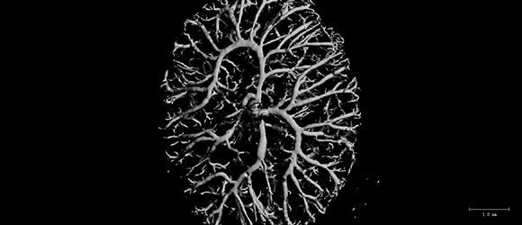 placenta2_b-31_kchannels_england